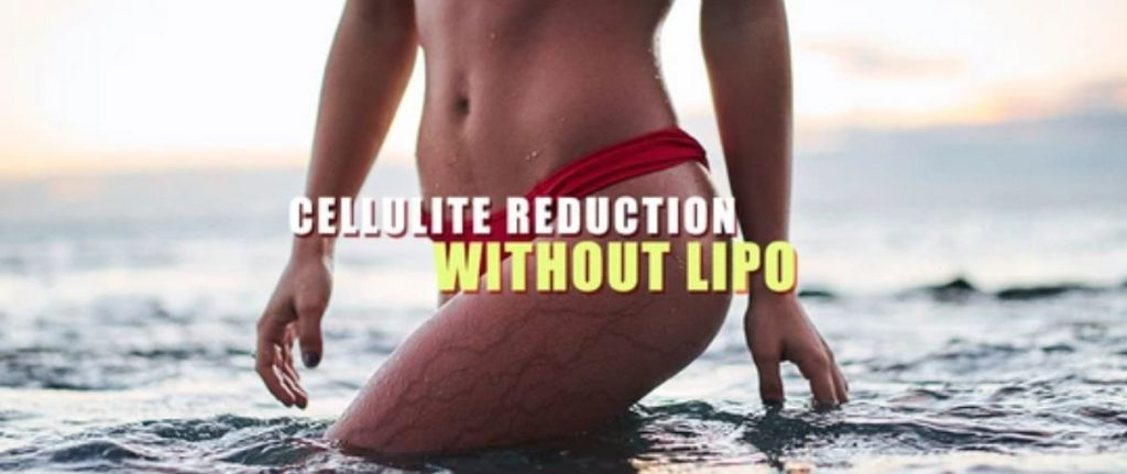 Cellulite Reduction Without LIPO? Now possible